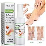Athletes Foot Spray, Spray para pies, Pies Fungus Treatment, Pies Treatment, Ayuda a tratar y restaurar la apariencia del pie