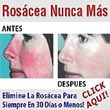 Best para rosáceas - Rosácea.Rosacea Cura Review
