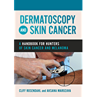 Dermatoscopy and Skin Cancer: A handbook for hunters of skin cancer and melanoma (English Edition)