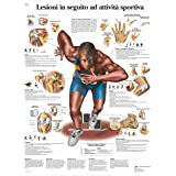 3B Scientific VR4188L Lesioni in Seguito ad Attività Sportiva