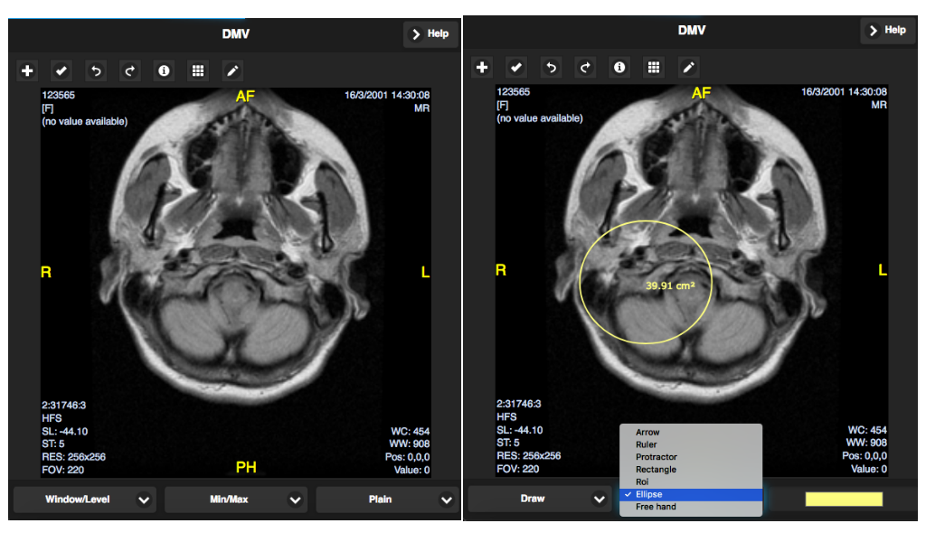 Dicom Viewer: Amazon co uk: Appstore for Android
