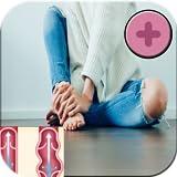 Krampfadern Behandlung von Hausmitteln App