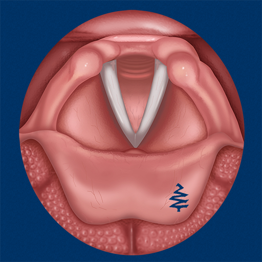 Vocal Folds ID (Tree Inc Blue Publishing,)