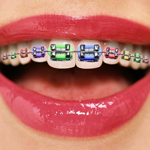 Zahnspangen-Collage