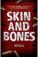 Skin and Bones Kindle Edition