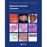WHO Classification of Tumours. Digestive System Tumours: WHO Classification of Tumours, Volume 1 (World Health…