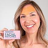Frownies Facial Patches tegen rimpels voorhoofd en tusen de ogen, 144 stuks