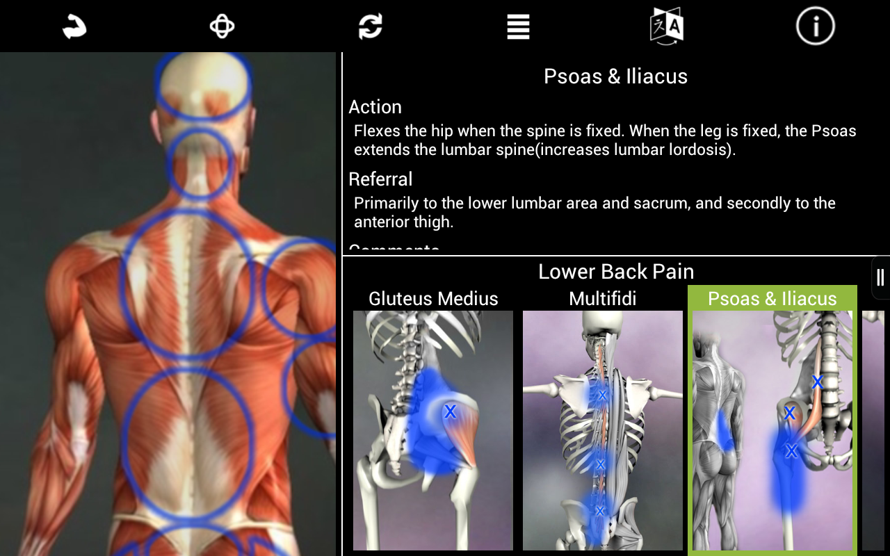 Muscle Trigger Point Anatomy: Amazon.de: Apps für Android